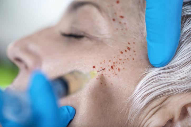 kosmetyczne leczenie przeciwstarzeniowe z osoczem bogatopłytkowym